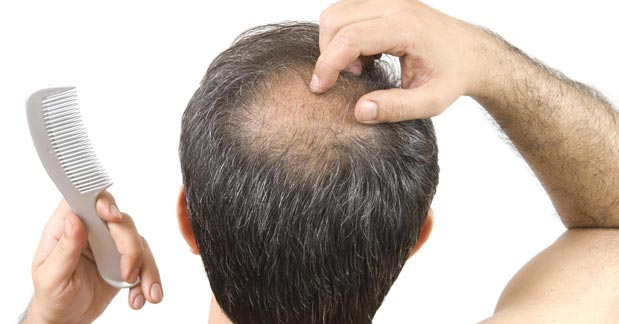 Use Biotin Products That Prevents Hair Loss