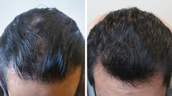 Hair Growth Benefits