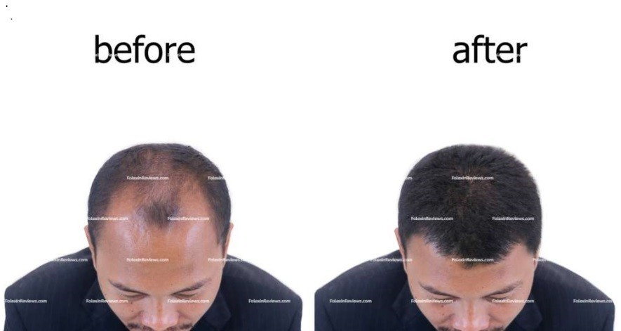 Folexin Before & After Results
